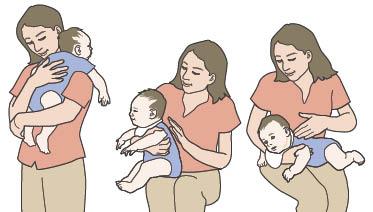 آروغ کودکان,باد گلو در نوزاد