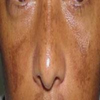 لک صورت,بارداری سالم,پیشگیری از لک صورت