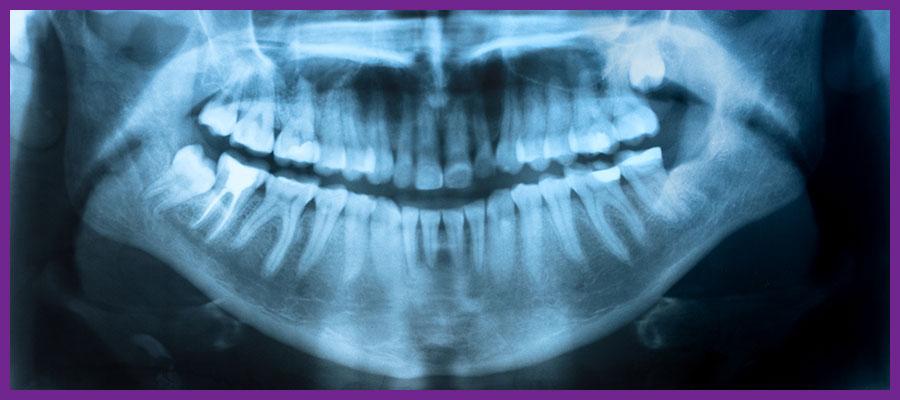 Dental-X-rays1