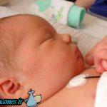 کم کاری تیروئید در نوزادان